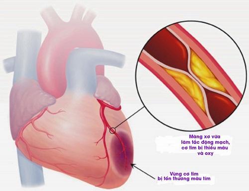 Không nên chủ quan với dấu hiệu của nhồi máu cơ tim