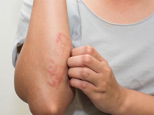 Nguyên nhân dẫn tới bệnh viêm da tiếp xúc?